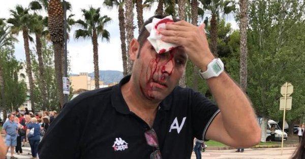 Ispanijoje neramu, į filmuojančius įvykius policija šaudo guminėmis kulkomis(video)